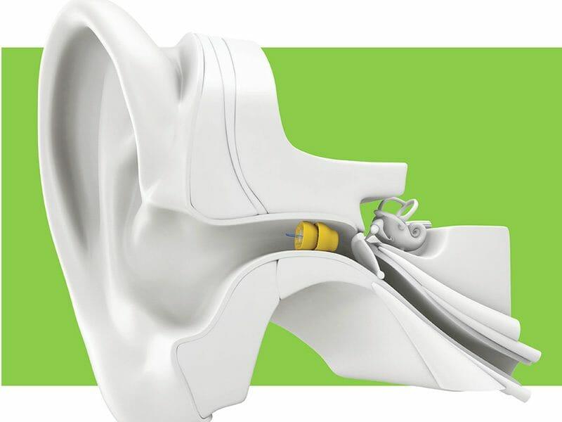 AudiologyOfGreenville-LyricHearingAid-ear